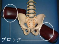 骨盤矯正2.jpg