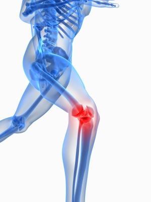 膝の痛み.jpg