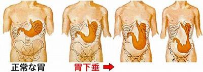 胃の解剖図2.jpg